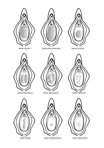 Οι 9 βασικές μορφές παρθενικού υμένα.
