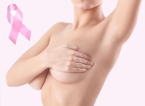 Όσα πρέπει να ξέρεις για την αυτοεξέταση στήθους