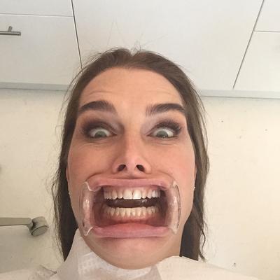 Πριν από λίγες εβδομάδες η 49χρονη ηθοποιός είχε ποστάρει αυτή τη φωτογραφία από το κρεβάτι του οδοντίατρου και πάλι, χωρίς όμως να εξηγήσει ποιο ήταν το πρόβλημα.   Ακομπλεξάριστη και χαλαρή η Μπρουκ