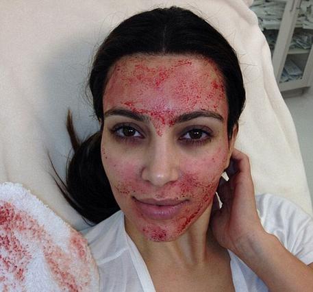 Επουλώνει τις όποιες πληγές στο πρόσωπο με το δικό της αίμα η Κιμ Καρντάσιαν μέσω της νέας αισθητικής θεραπείας...