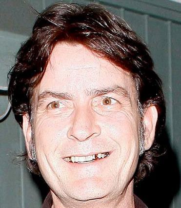 Κακοβαμμένο μαλί με τις φαβορίτες να έχουν μείνει γκρι και απεριποίητες και τα χρυσά δόντια στο στόμα να... βγάζουν μάτι. Κάτι δεν πάει και τόσο καλά με την εμφάνιση του Τσάρλι Σιν, αλλά εκείνον δεν φ