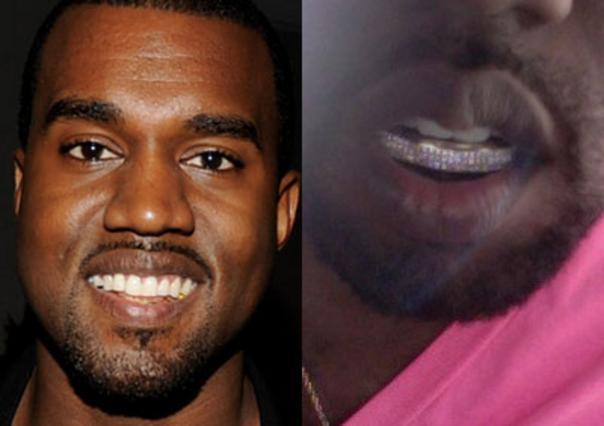 Τα θεωρεί πιο... κουλ, γι' αυτό τα άλλαξε τα δόντια του ο γνωστός ράπερ