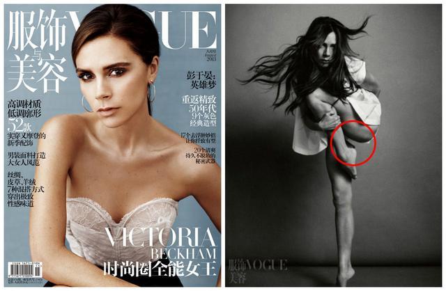 H απάντηση της Vogue για το κομμένο πόδι της Βικτόρια Μπέκαμ