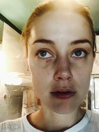 Σοκάρουν οι νέες φωτογραφίες της Άμπερ Χερντ μετά από  επίθεση  του Ντεπ