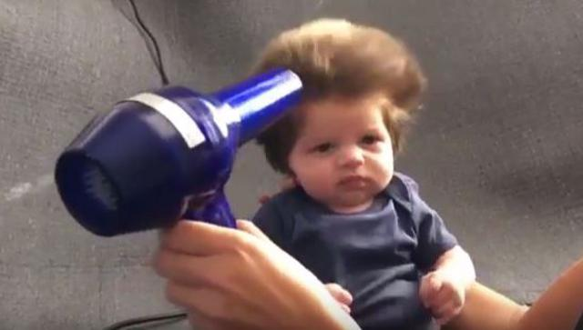 Θυμάσαι το μωρό που γεννήθηκε με μακρύ μαλλί; Βρήκαμε κι άλλο! [vds]