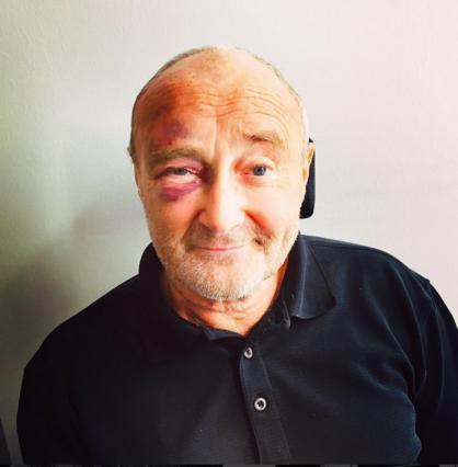 Ο Φιλ Κόλινς με μαυρισμένο μάτι -Τι του συνέβη;