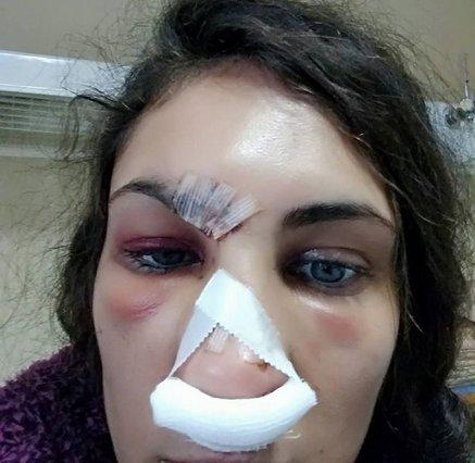 ΣΟΚ! Στο νοσοκομείο με μώλωπες στο πρόσωπο γνωστή Ελληνίδα