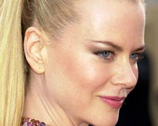 Κακή διαφήμιση για τα Botox η Κίντμαν!