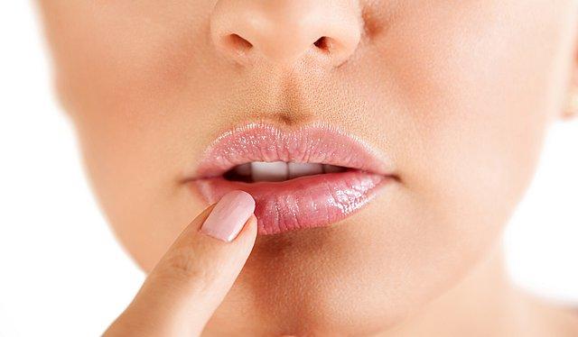 Επιχείλιος έρπης: Αυτά είναι τα 5 φυσικά προϊόντα που θα σε βοηθήσουν στην αντιμετώπιση του
