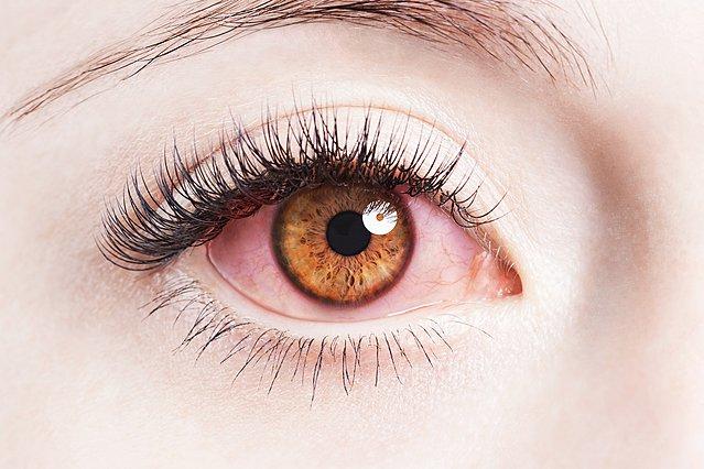 Κοκκινίζουν τα μάτια σου; Τι μπορεί να προκαλεί το σύμπτωμα και πώς να το αντιμετωπίσεις