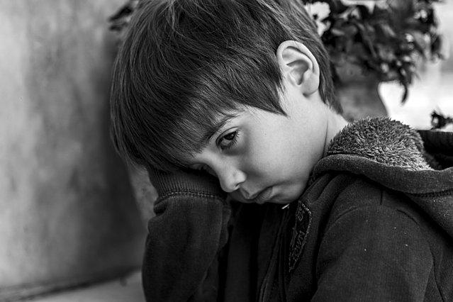 Επιληψία στα παιδιά & Αυτισμός