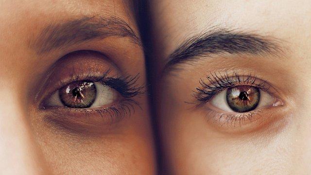 Eρεθισμένα μάτια: Οι 5 πιο συνηθισμένες αιτίες και πώς να τις αντιμετωπίσεις